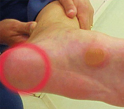 Atrofia do Coxim Plantar